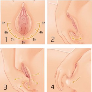 perineal massage